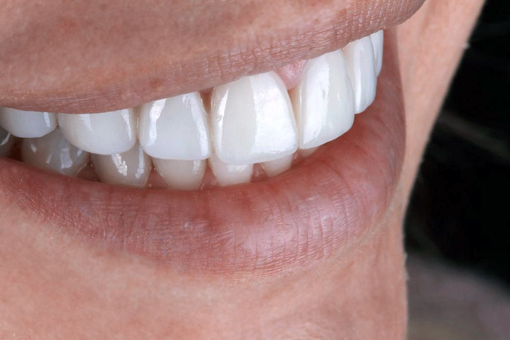 Close up of veneers