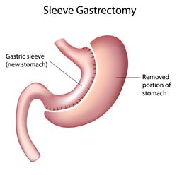 Tijuana Sleeve Gastrectomy Revision Correction Of Gastric Sleeve