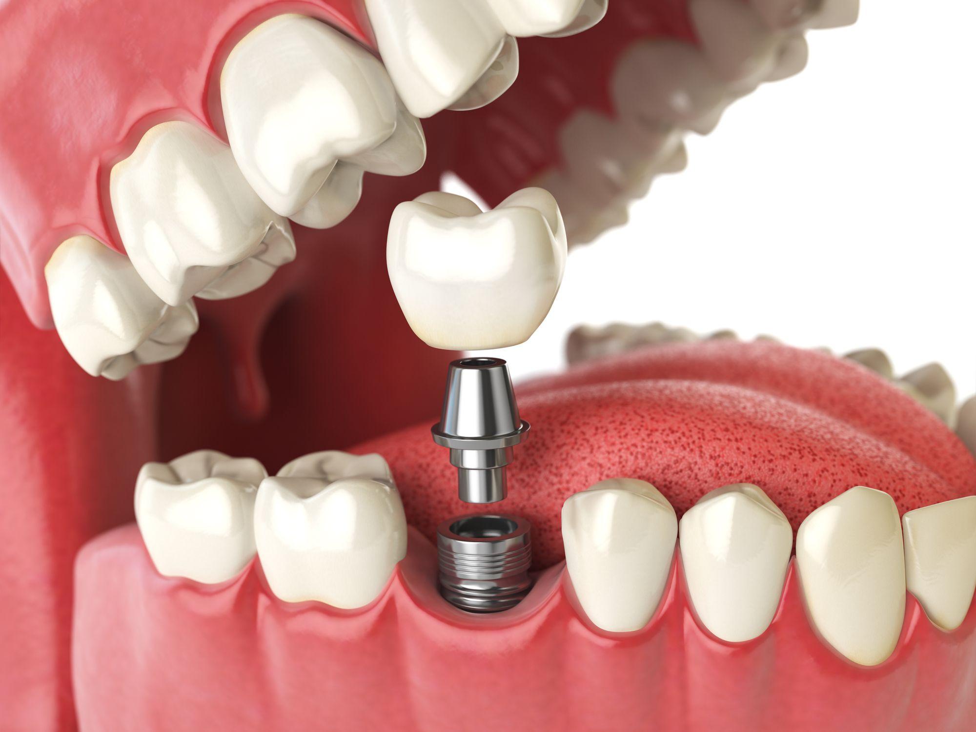 Dental implant healing abutment