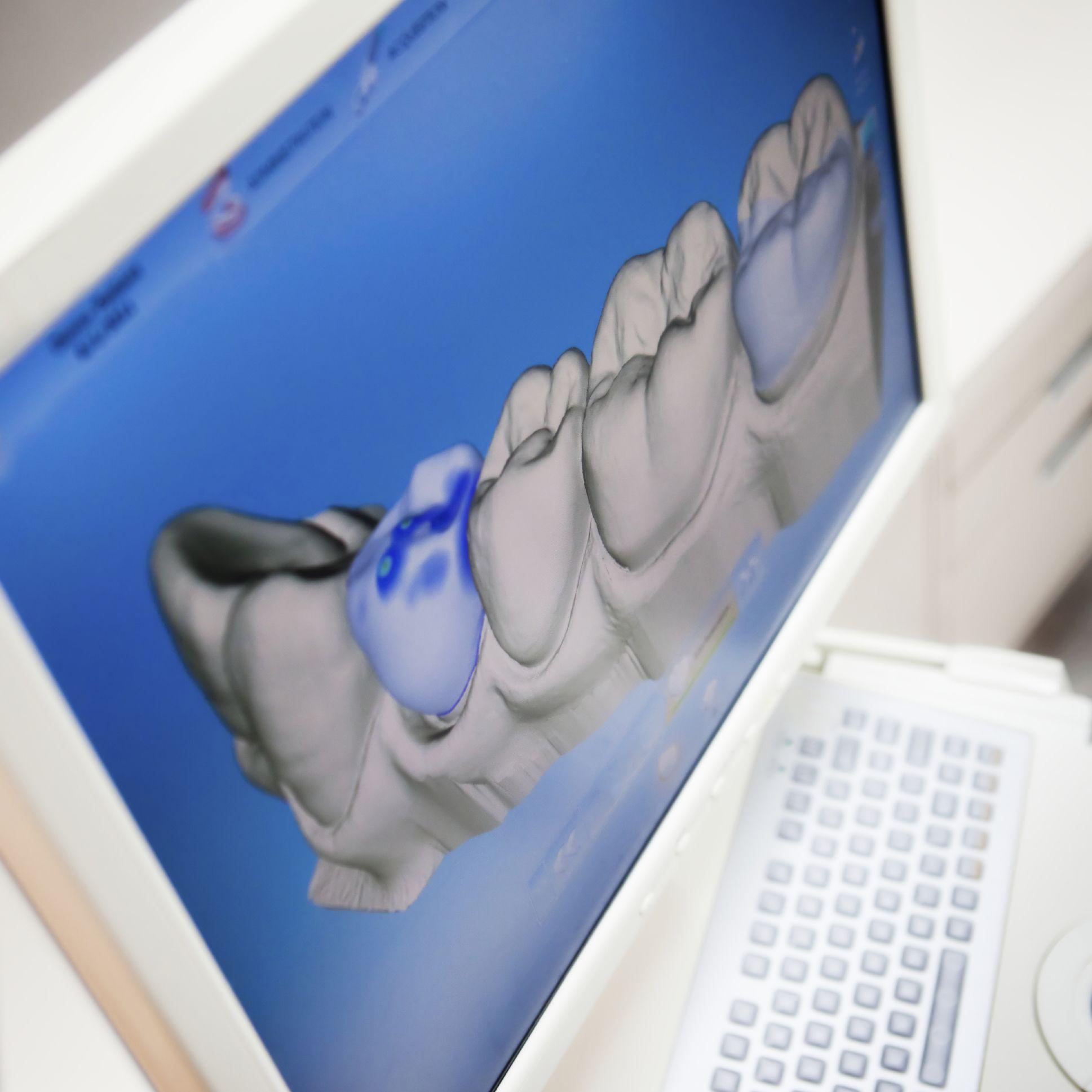 Smile design imaging technology