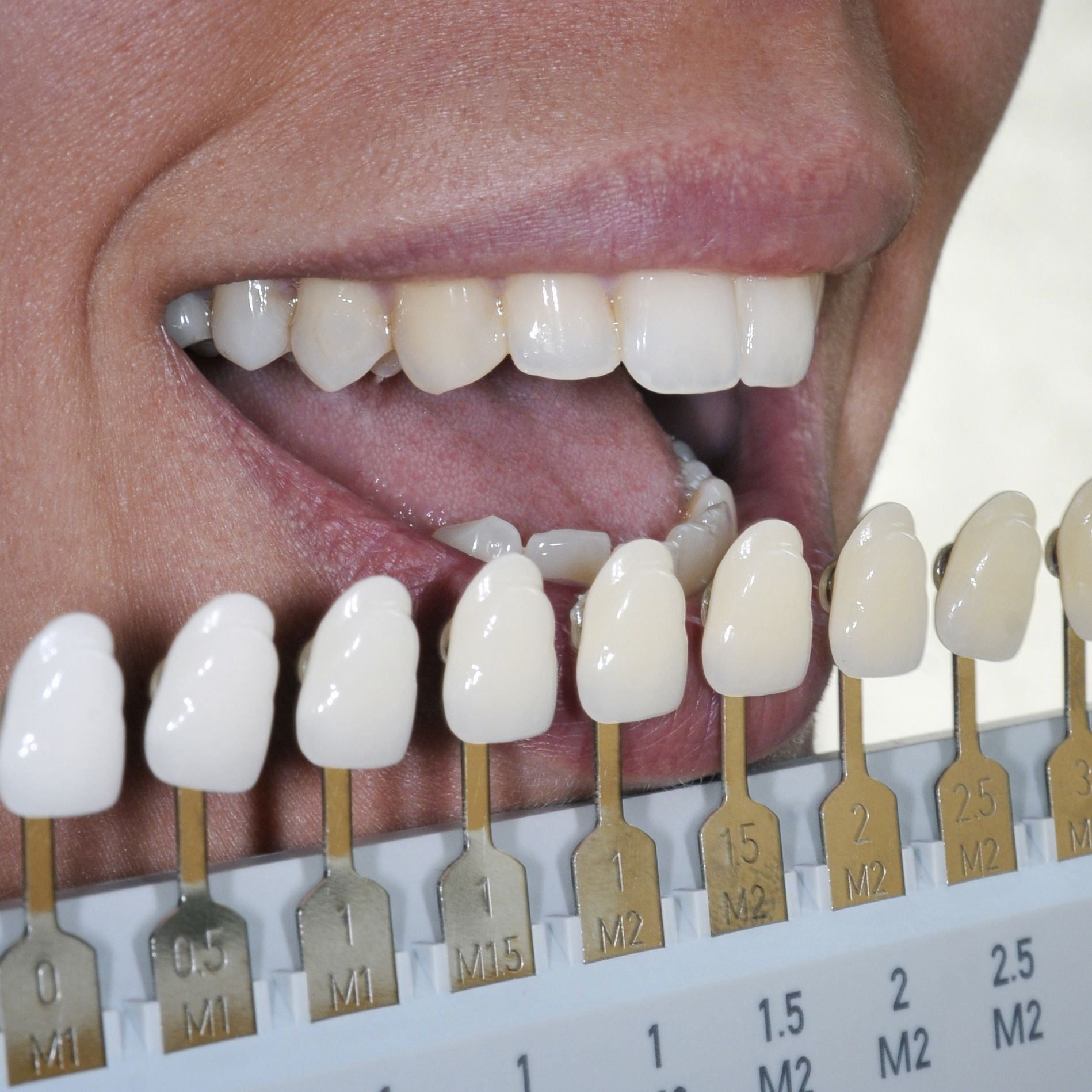 Photo of a shade guide next to teeth