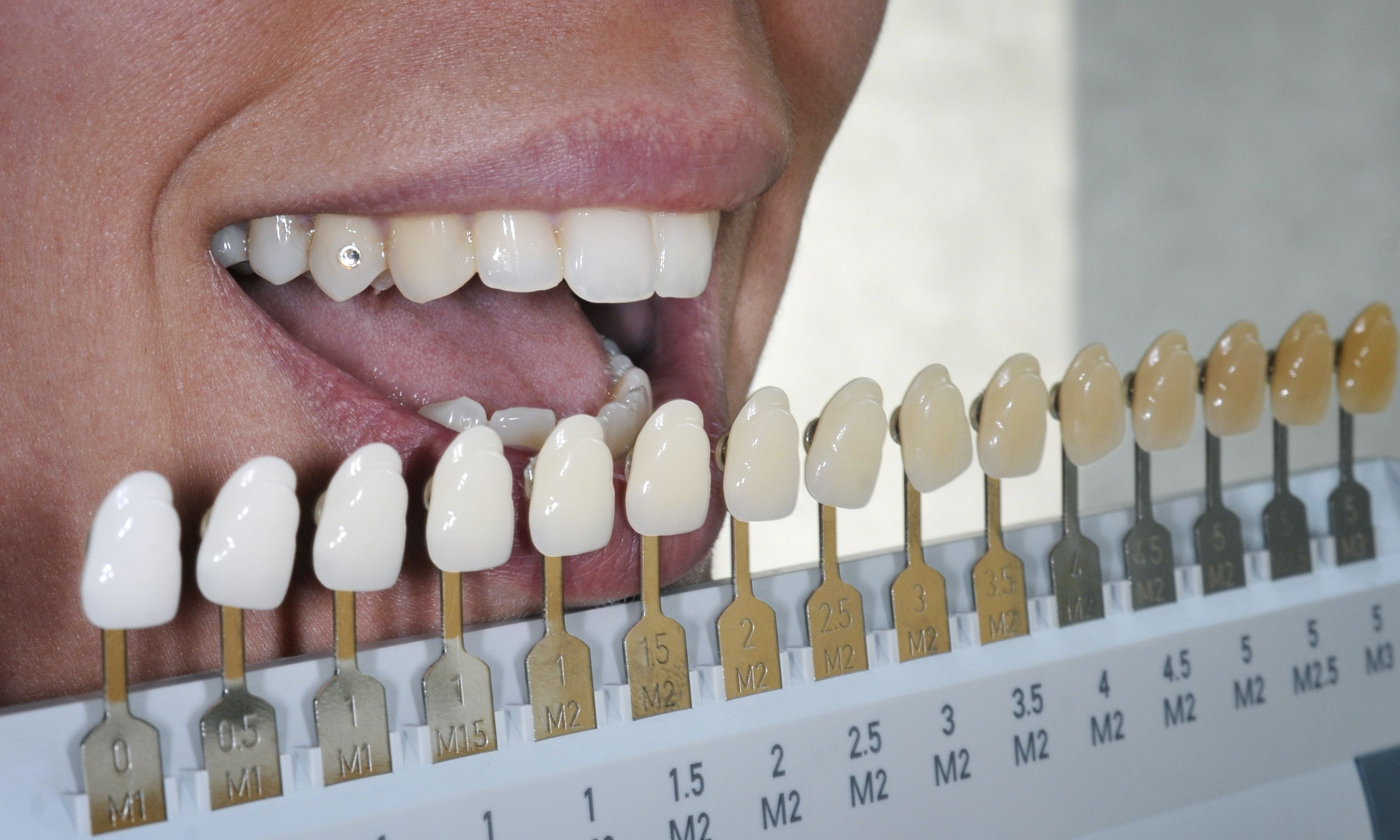 Degrees of tooth discoloration