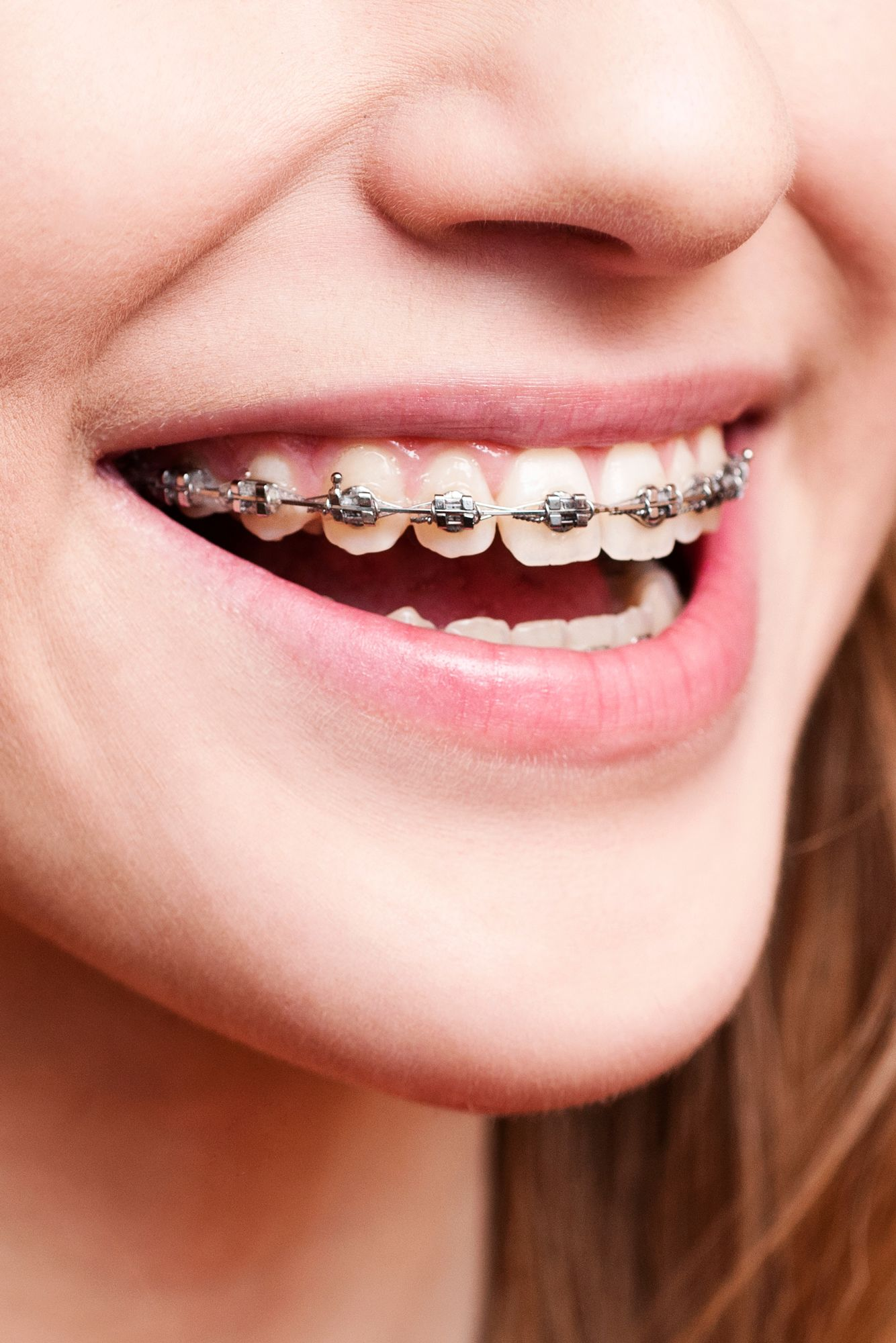 Braces Tightening Side Effects - Philadelphia, PA