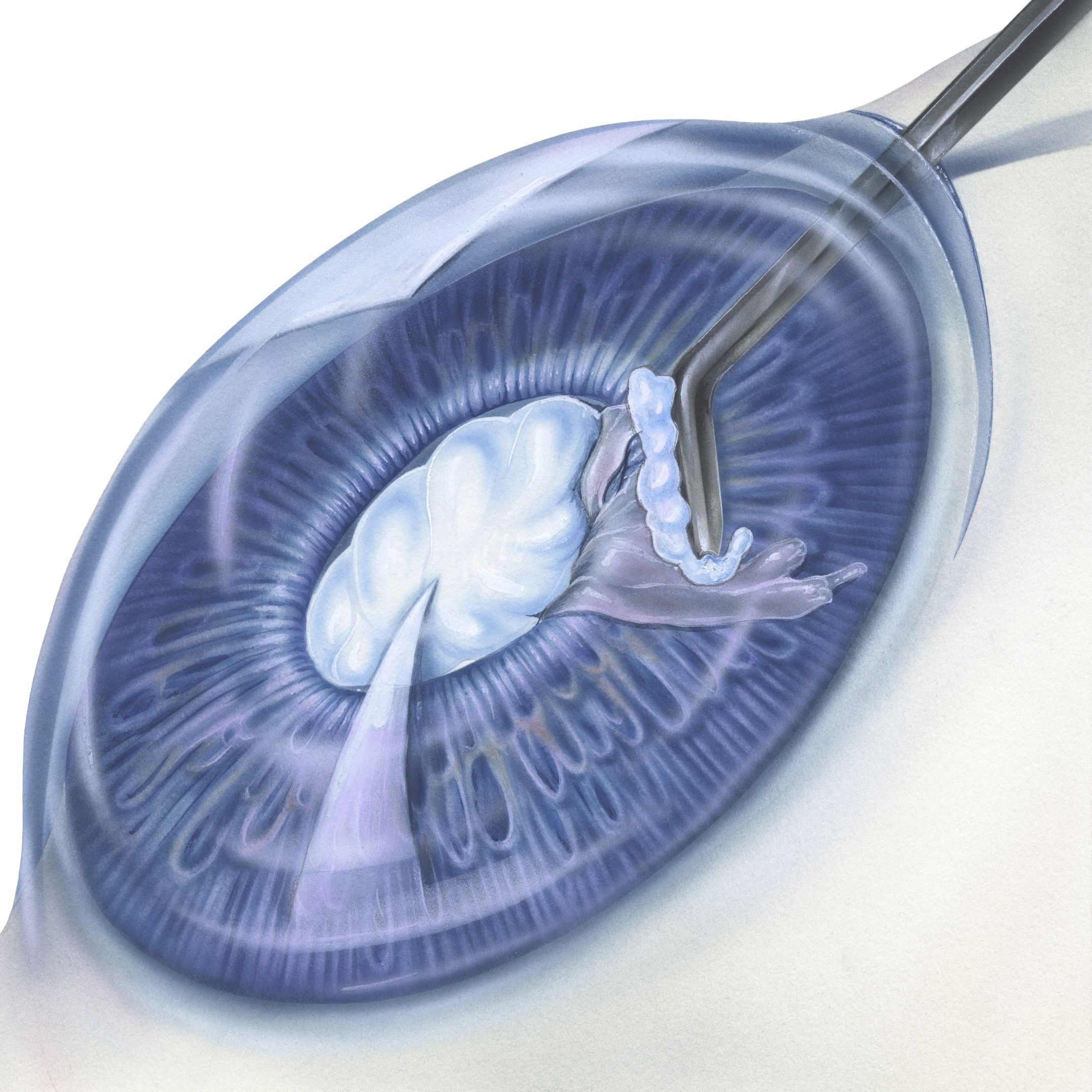 Removing a cataract