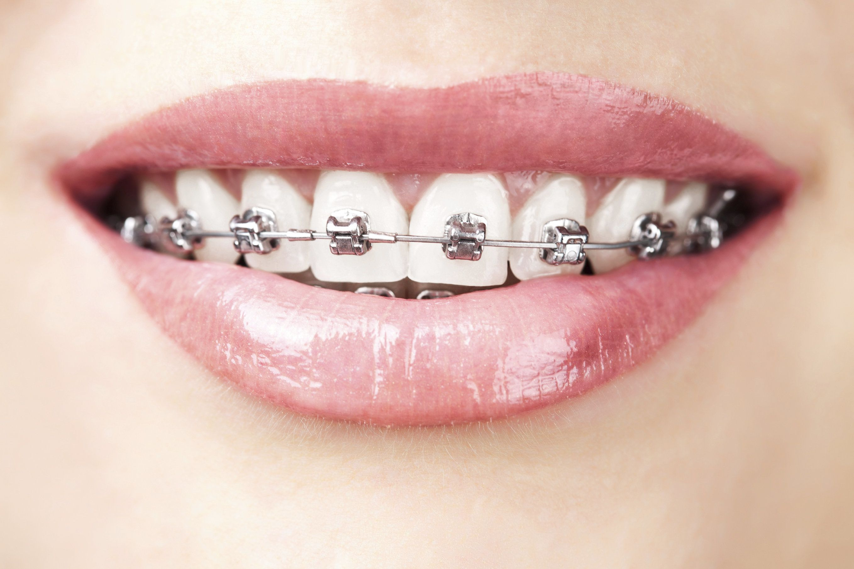 Braces on a set of teeth