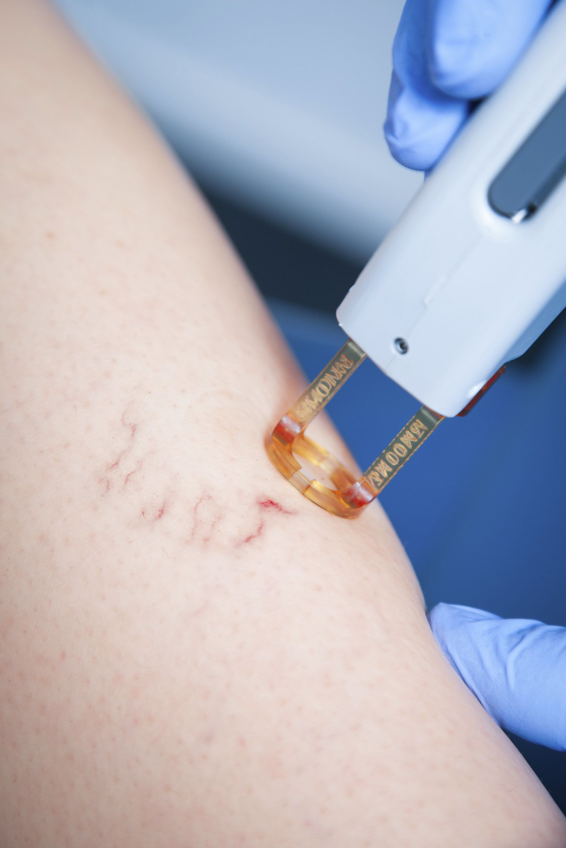 Patient receiving laser leg vein treatment