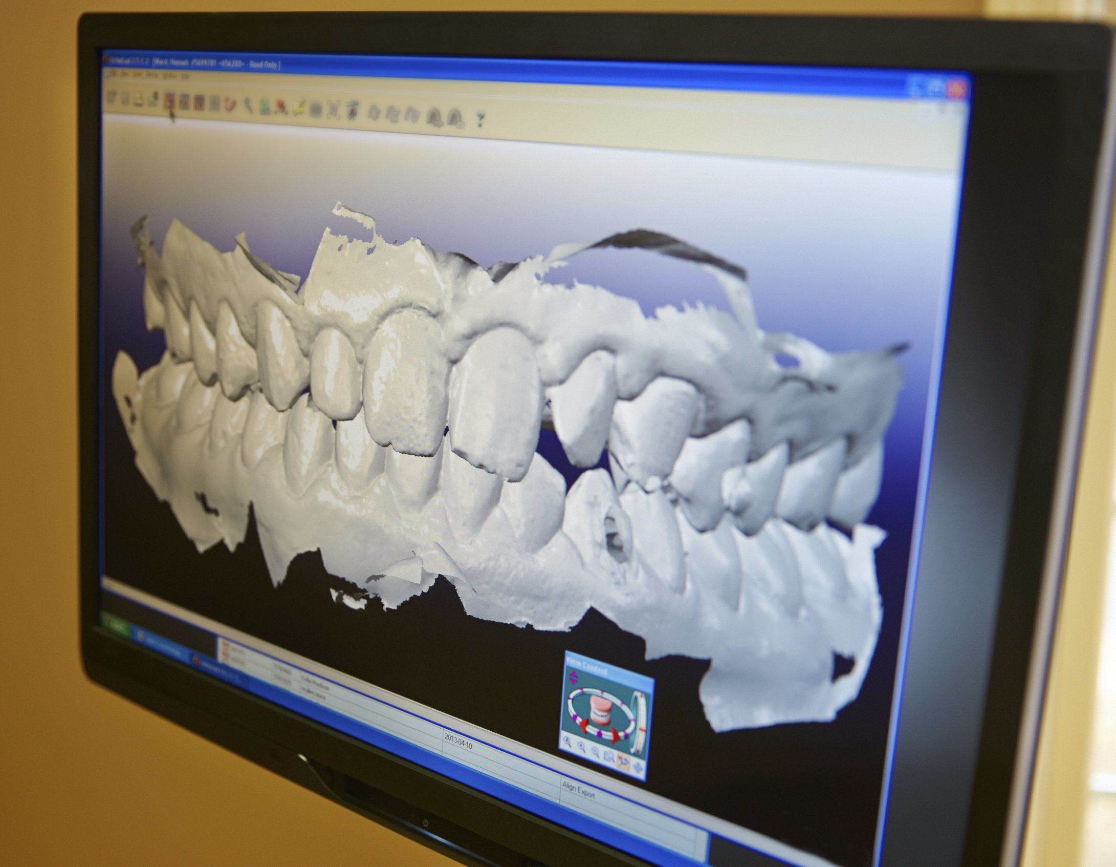 Digital image of jawbone degeneration