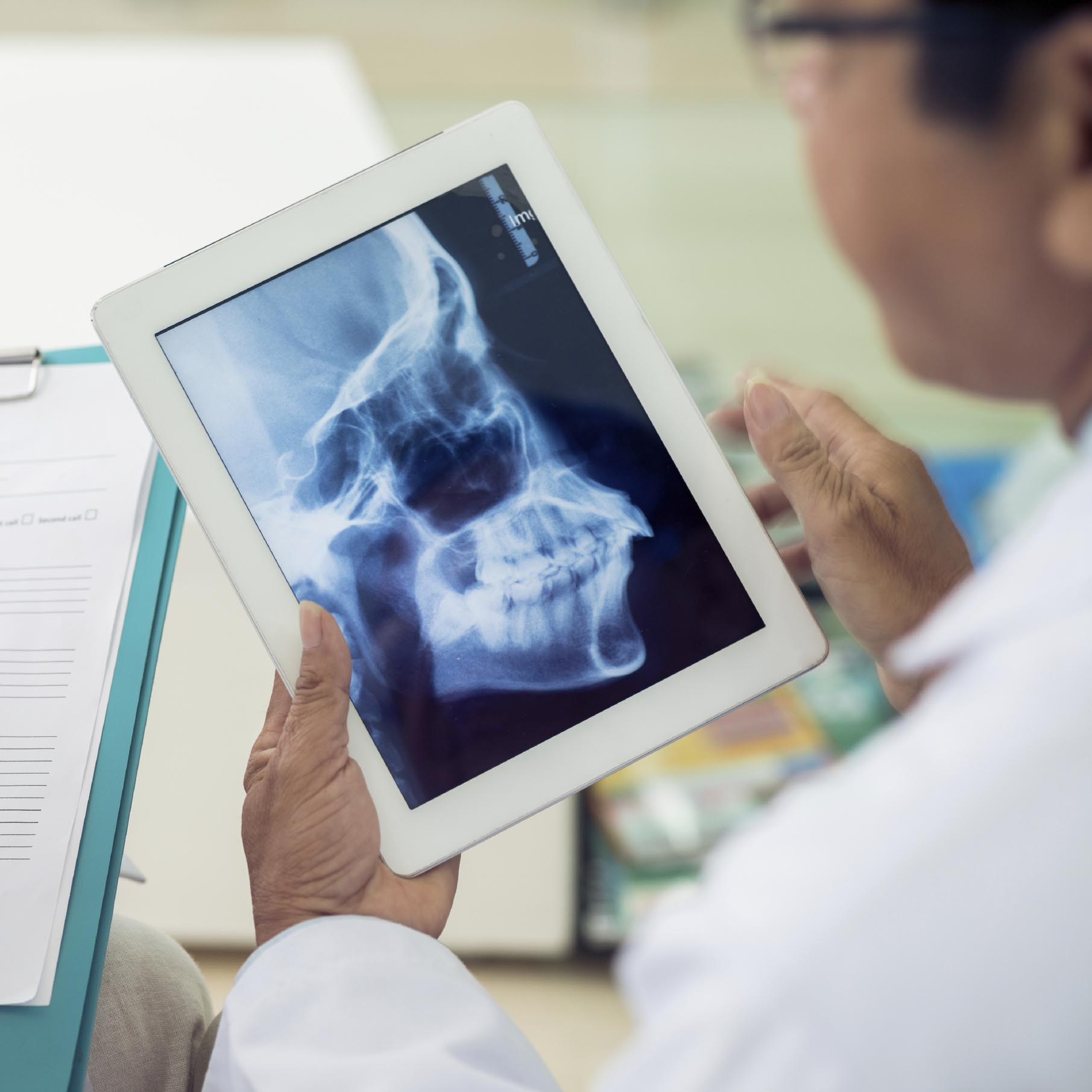 A traditional dental x-ray