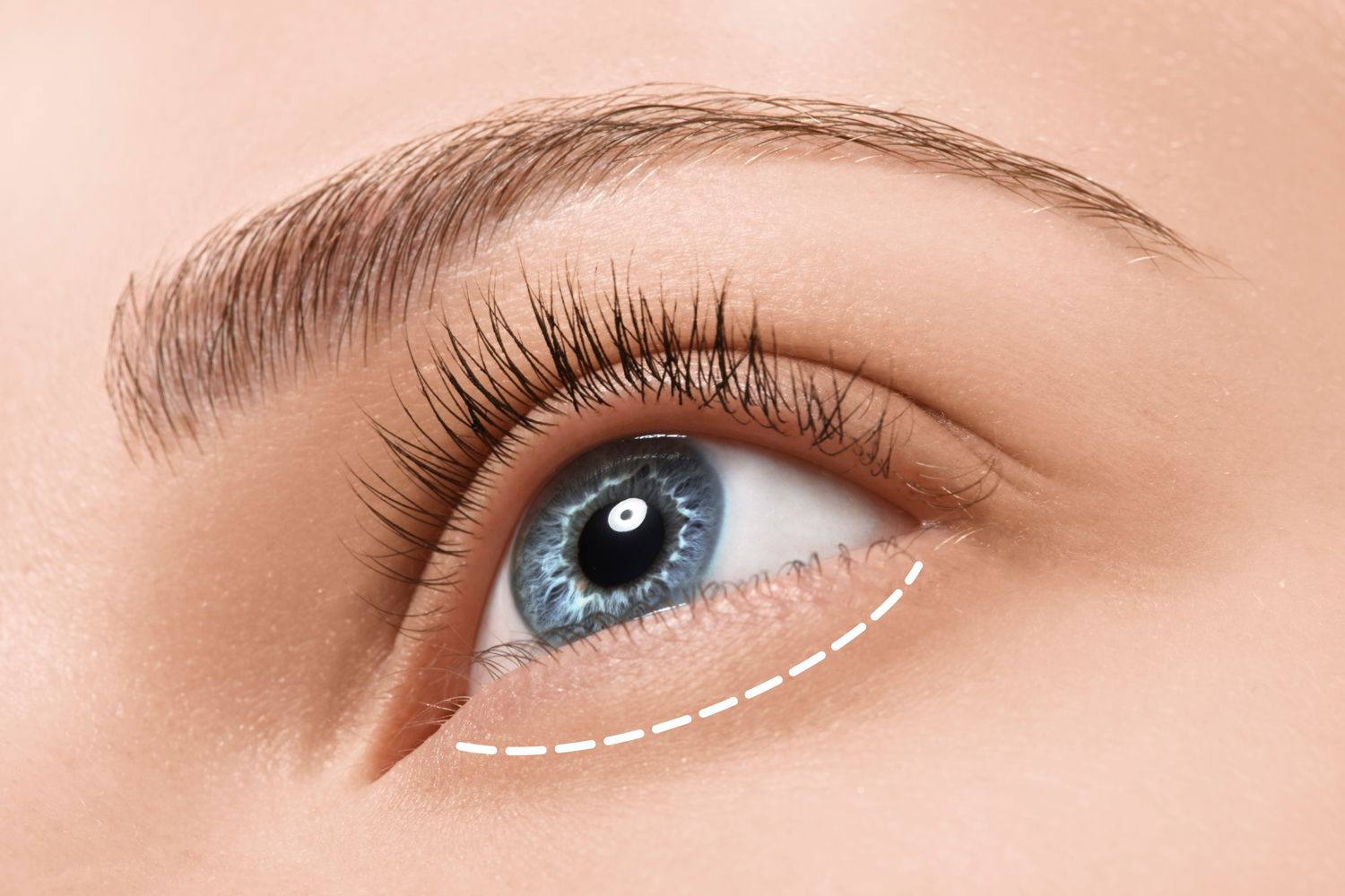 How lower eyelid surgery is performed