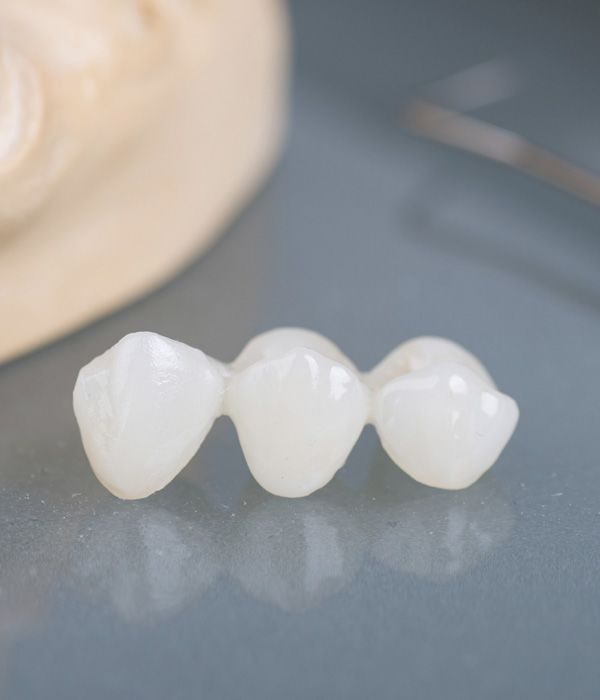 A tooth-colored dental bridge