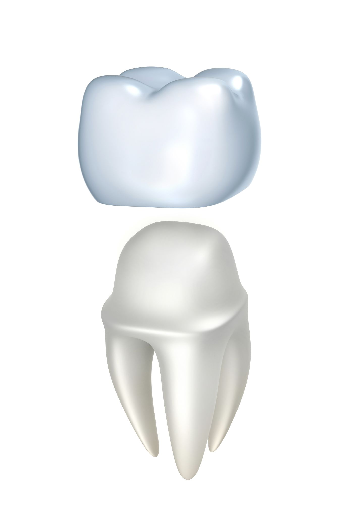 A porcelain dental crown over a tooth