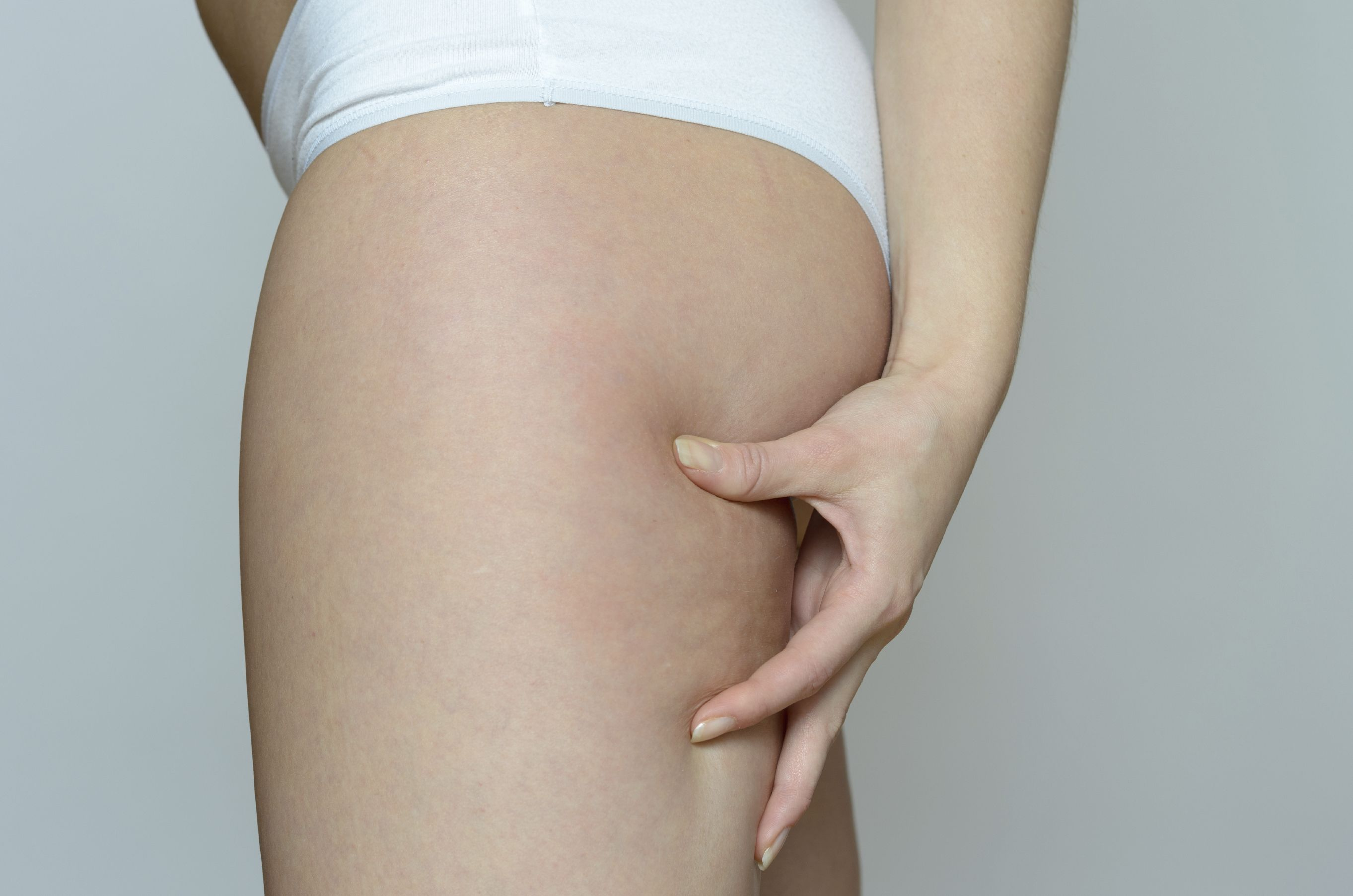 A woman pinching her thighs prior to thigh lift surgery