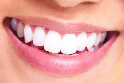 Red Bank Professional Teeth Whitening Benefits