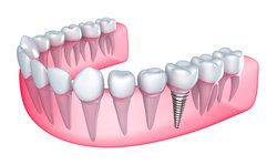 Illustration of lower jaw with dental implant