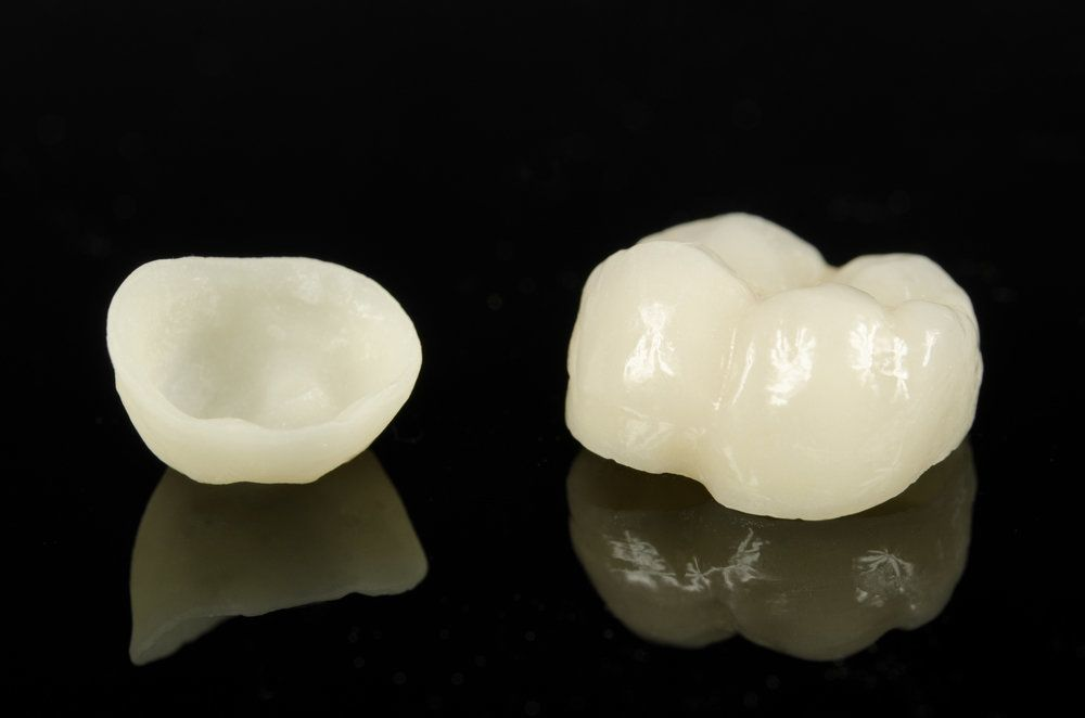 Two porcelain crowns