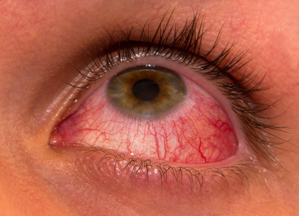 A person suffering from pink eye (conjunctivitis)