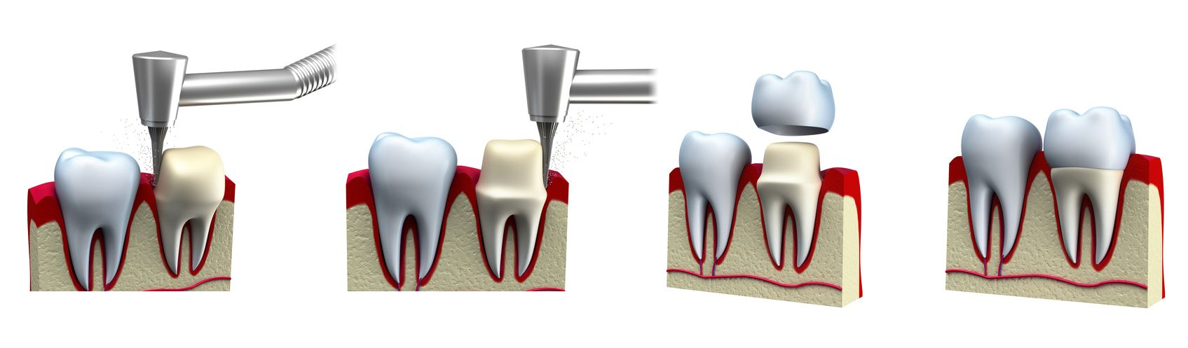 Four-panel digital image of dental crown placement process