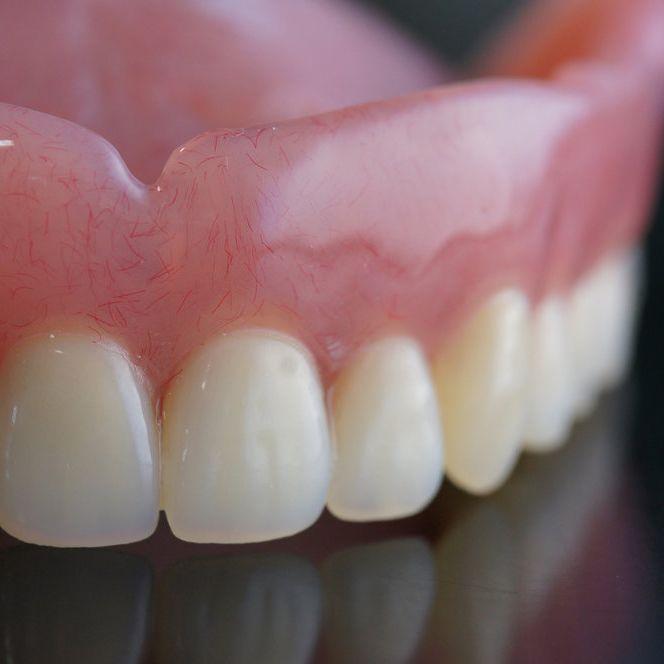 Close up of denture