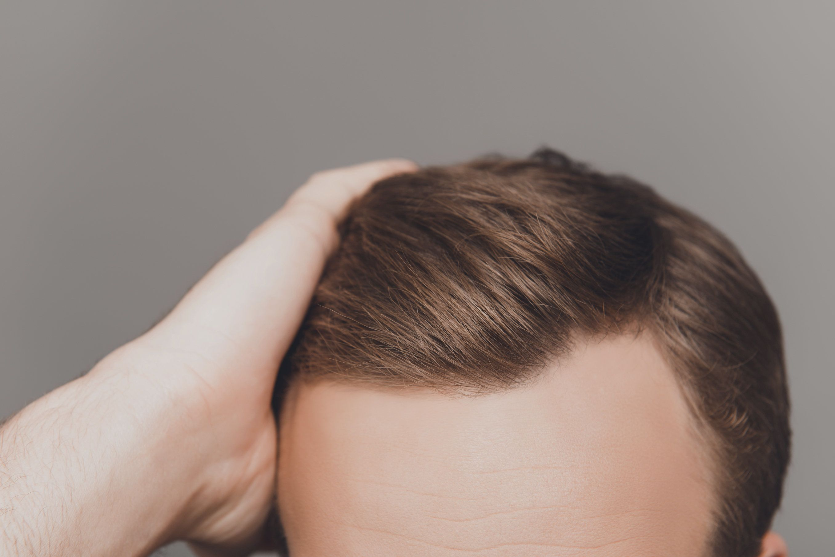 A man's full head of hair after later slit grafting