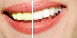 Troy Tooth Discoloration Treatment