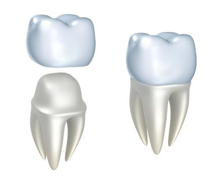 Dental crowns and tooth, isolated on white.