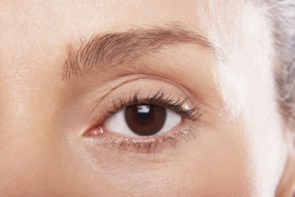 Close-up of a patient's eye just prior to upper eyelid surgery