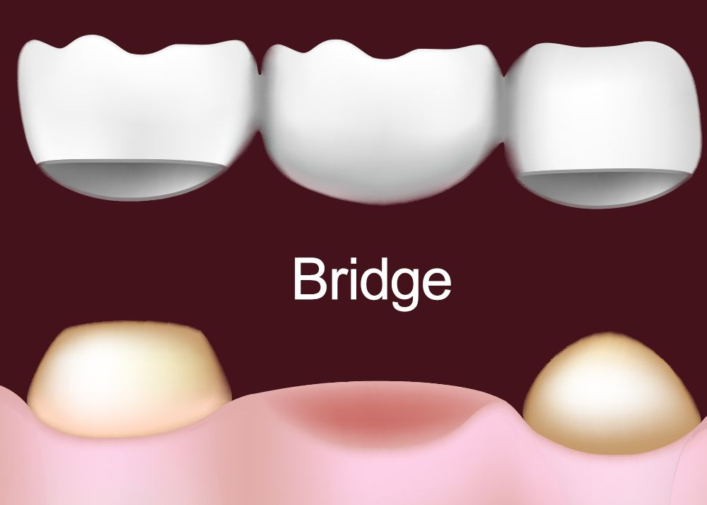Dental bridge being placed over prepared teeth