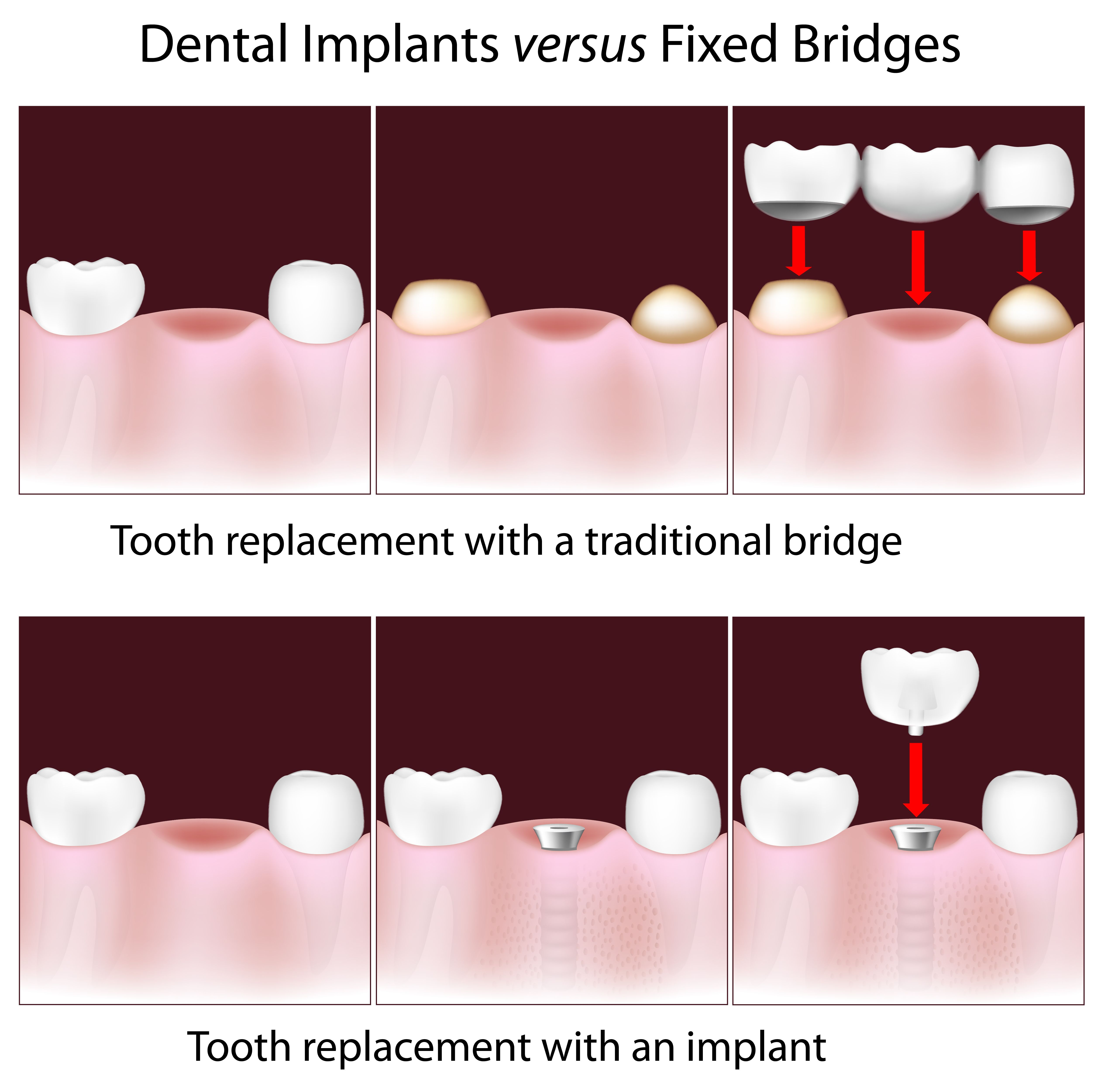 Illustration of a traditional vs implant-supported bridge
