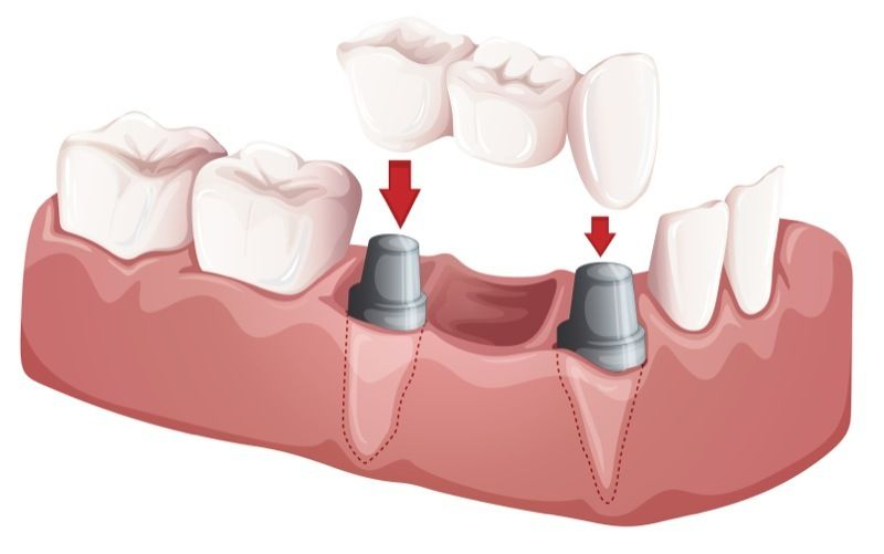 Illustration of an implant-supported dental bridge