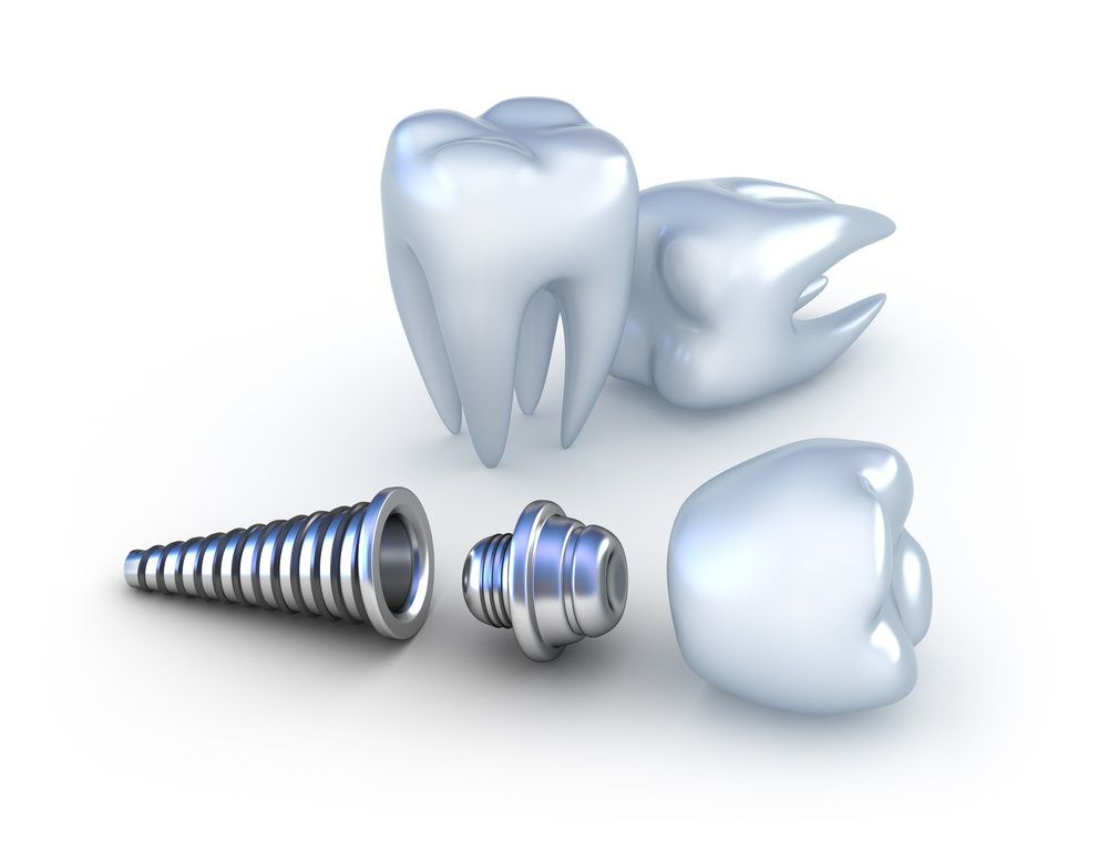 Anatomy Of A Dental Implant Harrisonburg Va