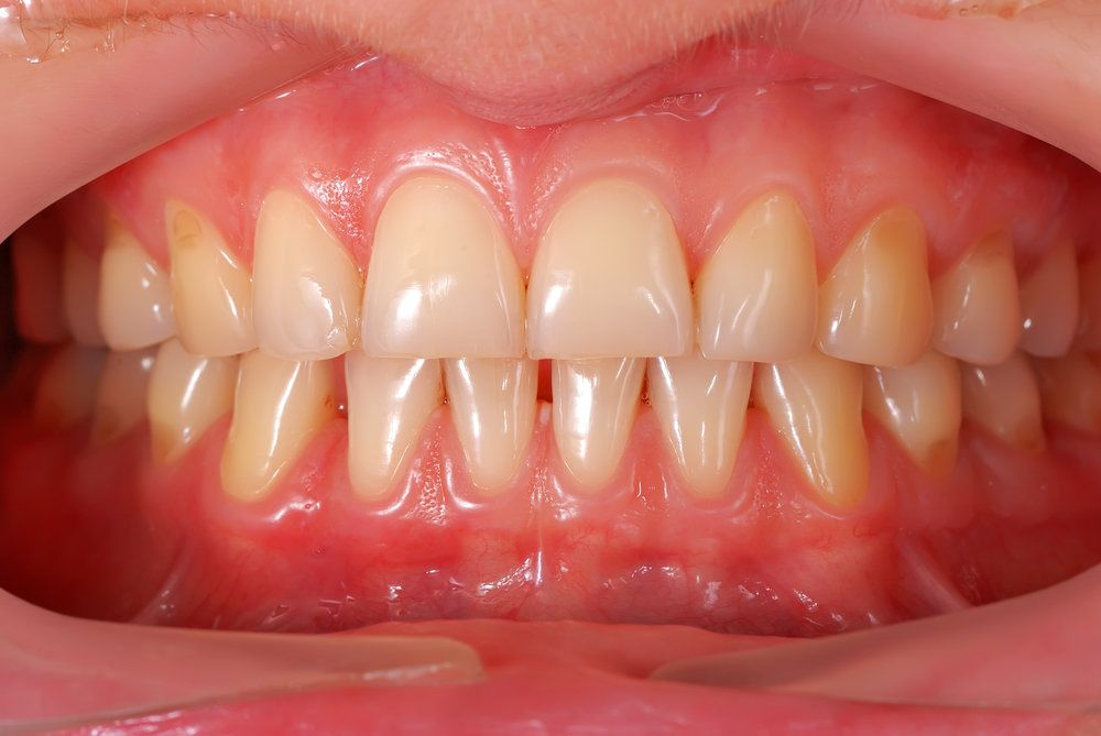 A close image of a patient's healthy teeth and gums
