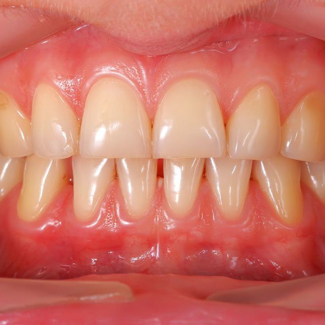 Close up of a smile affected by yellowed teeth and receding gums
