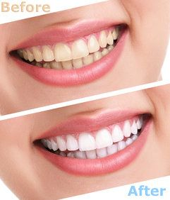 Before and after pictures of teeth whitening