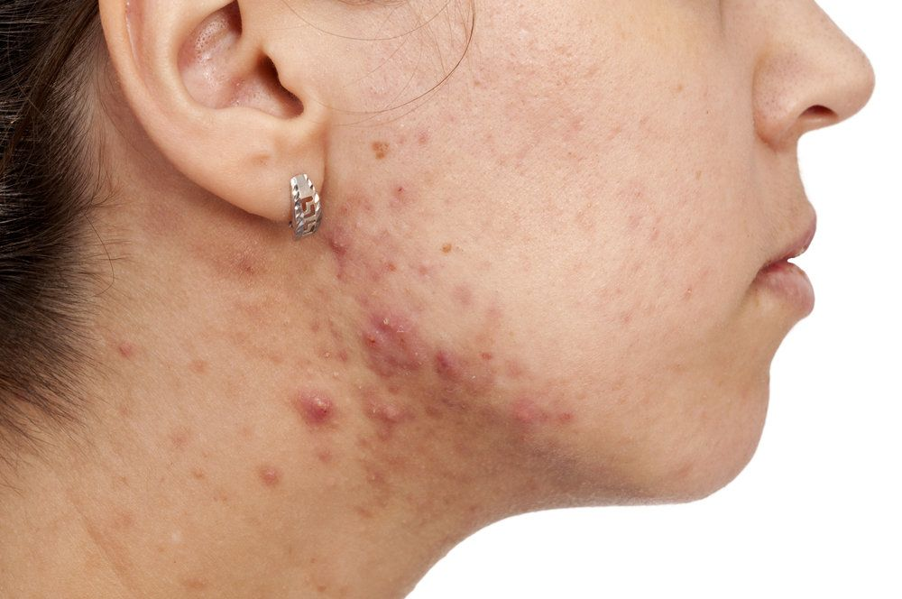 Woman's jaw with acne and scarring