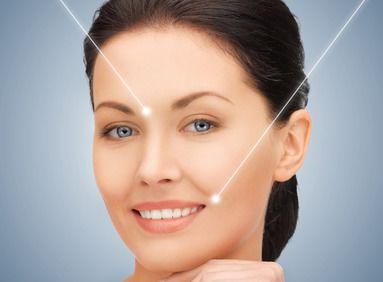 Smiling woman with illustrated lines highlighting wrinkle-prone areas