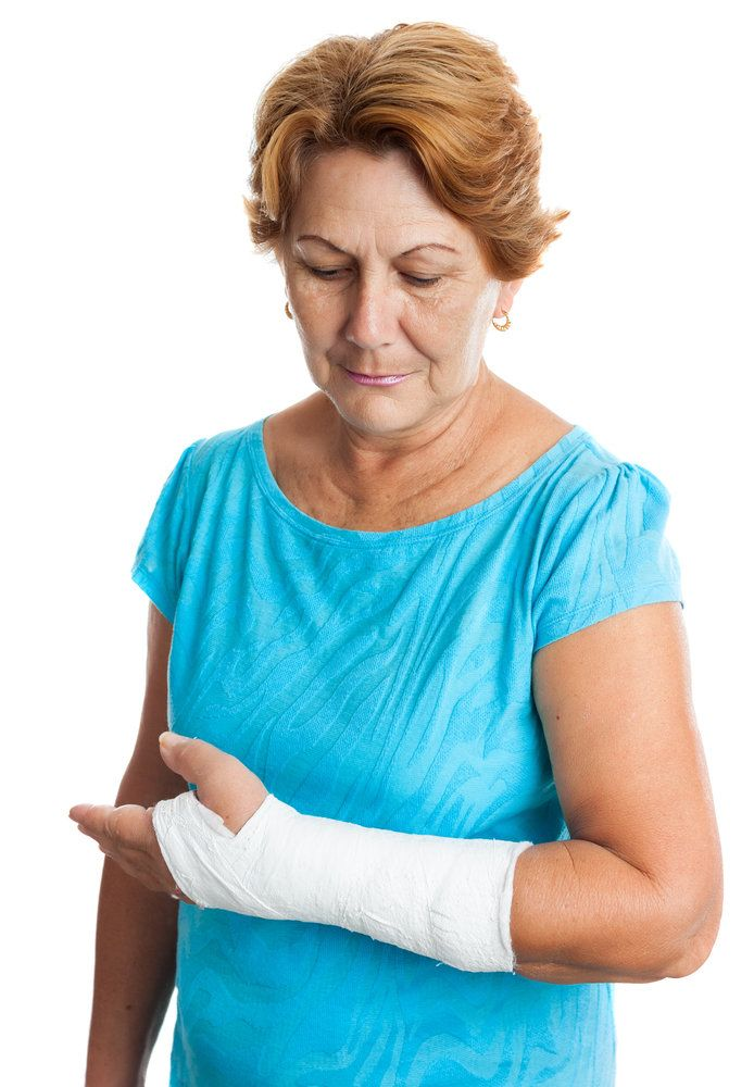 A woman with a cast on her arm