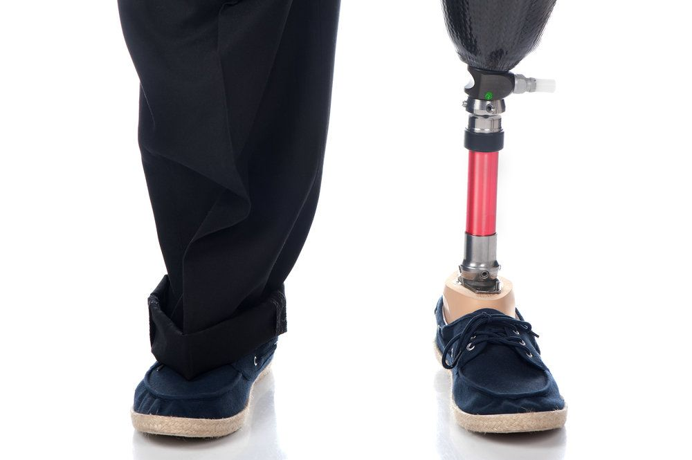 Close view of man's legs with one artificial, attached to prosthetic shoe