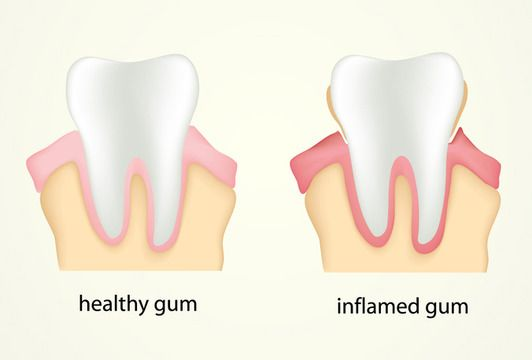 Animation of healthy tooth and gums and tooth with gum disease