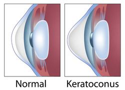 Illustration of normal cornea and keratoconus