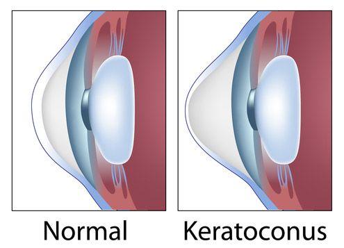 A normal eye vs. an eye affected by keratoconus
