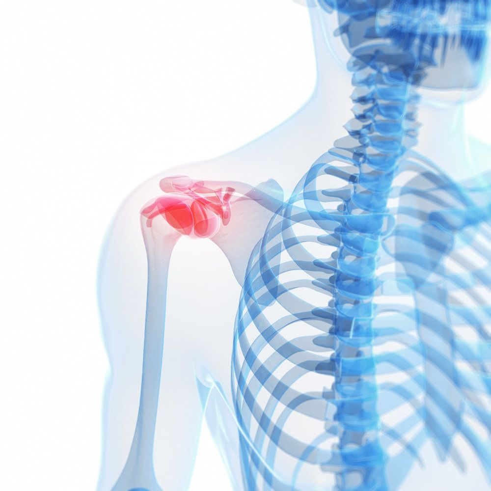 An issue with the shoulder joint and rotator cuff