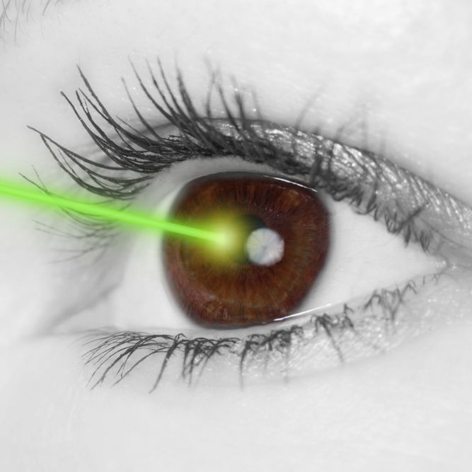 Illustration of a laser light being directed into the cornea of an eye, as in LASIK surgery