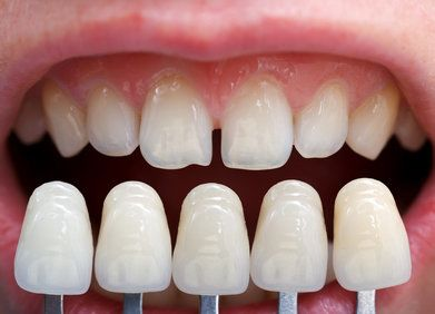 Close-up on veneer shade guide next to gapped teeth