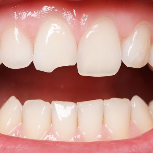 Close-up of a chipped front tooth in need of treatment