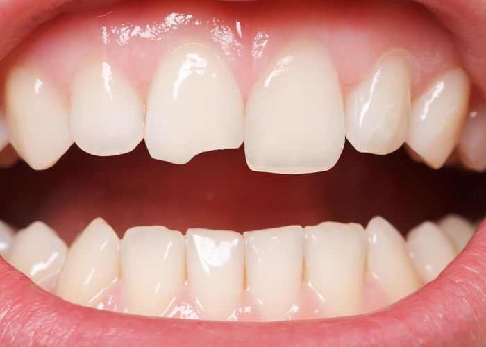 A close-up of a chipped front tooth