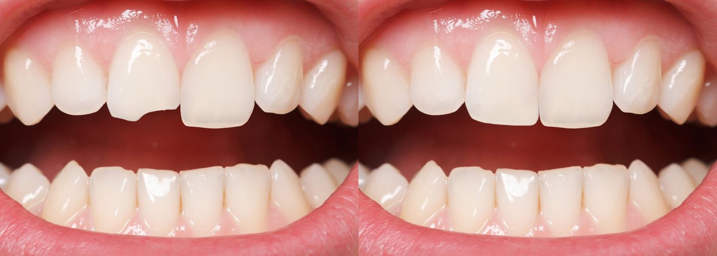 A before-and-after comparison of a smile affected by chipped teeth next to the same smile after treatment