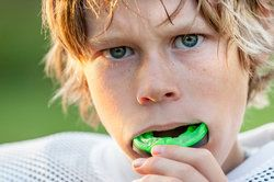 Young athlete putting in a mouth guard
