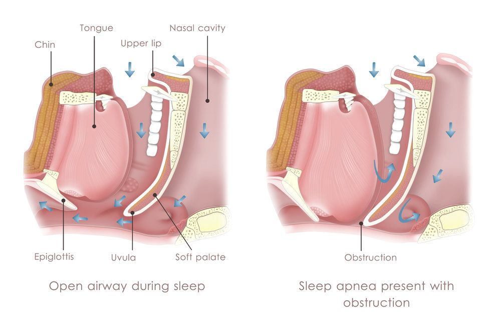 illustration of obstructive sleep apnea