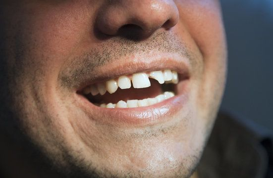 Man showing chipped front tooth