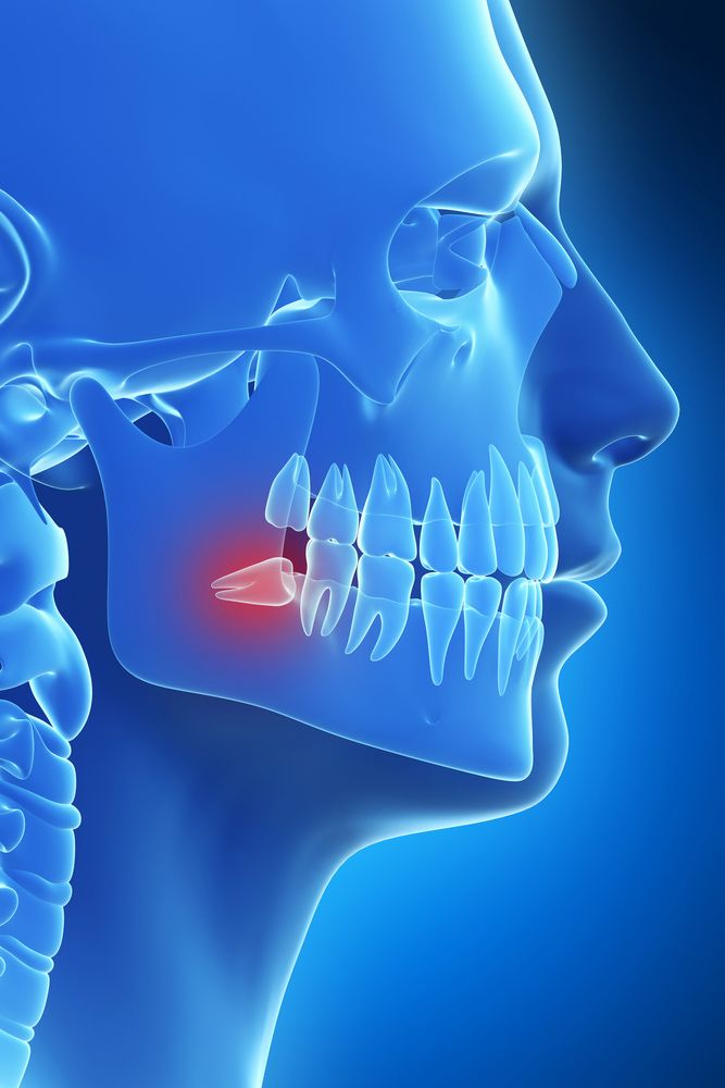Illustration of skull in blue with wisdom tooth in red